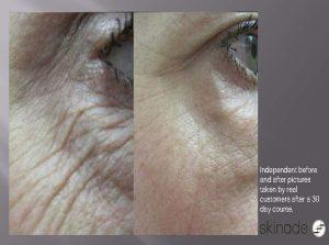Skinade wrinkles