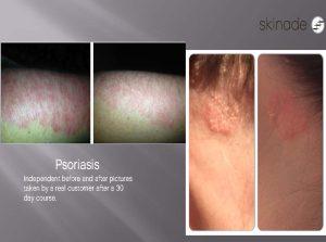 Skinade Psoriasis