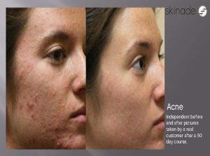Skinade acne