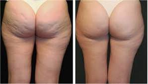 3D Liposuction