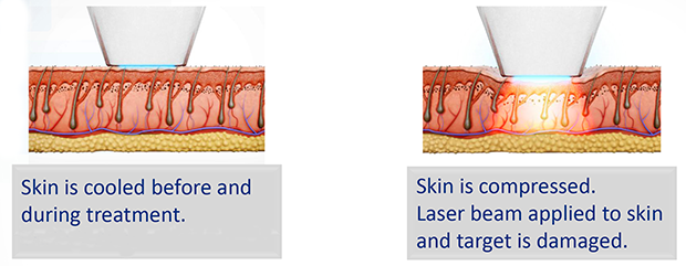 Laser Hair Removal Leeds - Chill Tip Technology