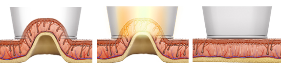 Laser Hair Removal Leeds - High Speed Integrated technology HIT