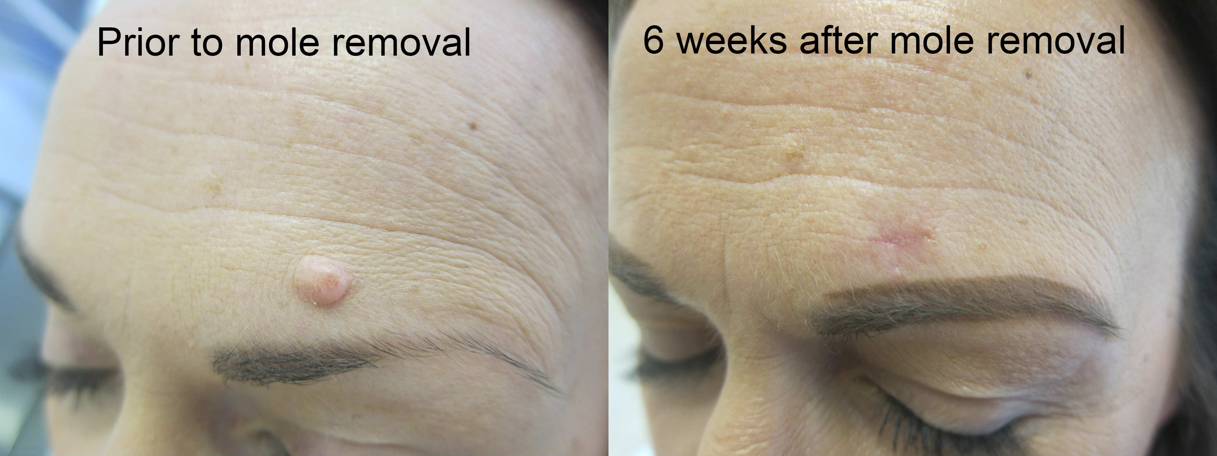 Mole-removal-Skin-Tag-Removal-Leeds-Wakefield-Bradford-Dewsbury-Batley